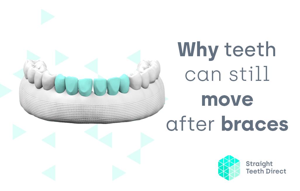 Why Teeth Move