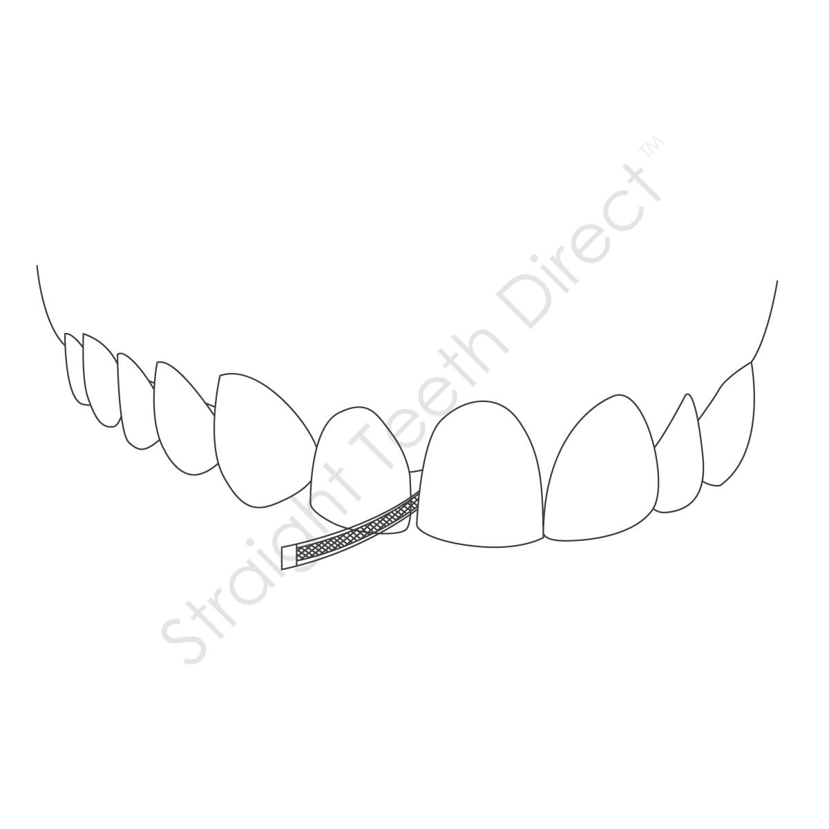 straight-teeth-direct-ipr2