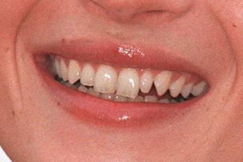 straight-teeth-direct-kate-moss-1