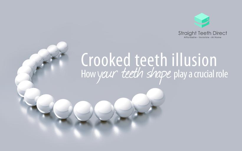 teeth shape