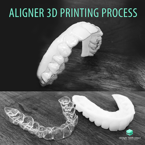 example-of-how-aligners-at-home-are-made