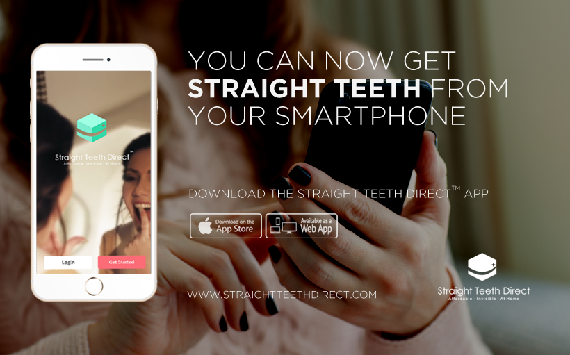 You can now get aligners at home from-your-smartphone