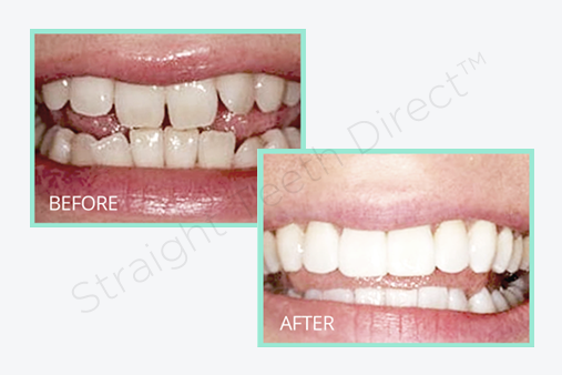 teeth-shape-before-and-after