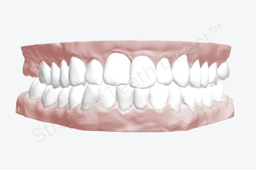 after-using-aligners-theyre-much-straighter-with-cosmetic-improvement