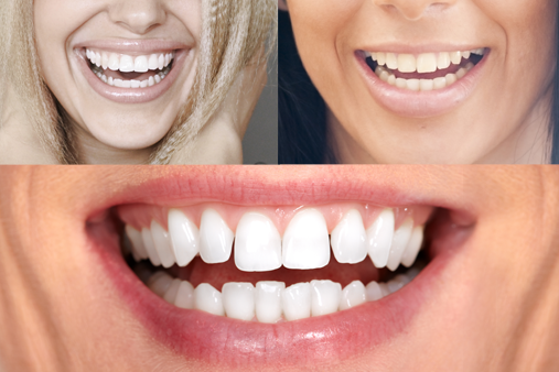 crooked-lower-teeth-smiles