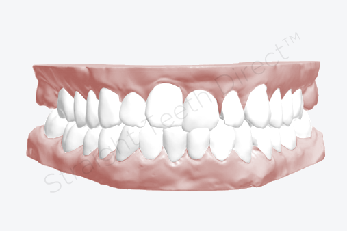 front-teeth-uneven-example-before-cosmetic-improvement