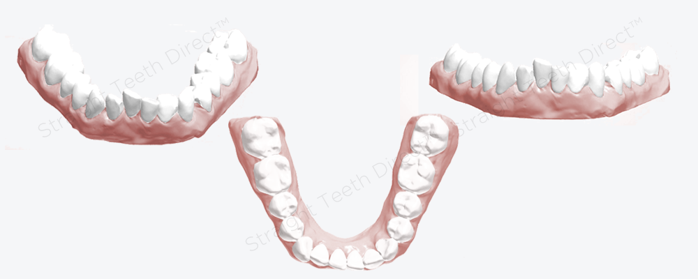 lower-teeth-are-very-crowded-and-uneven-before-cosmetic-improvement