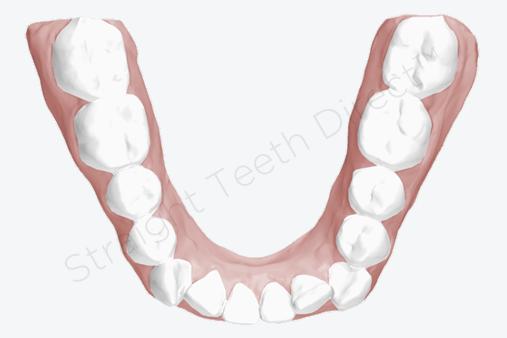 straight-teeth-shape-cosmetic-bonding-example