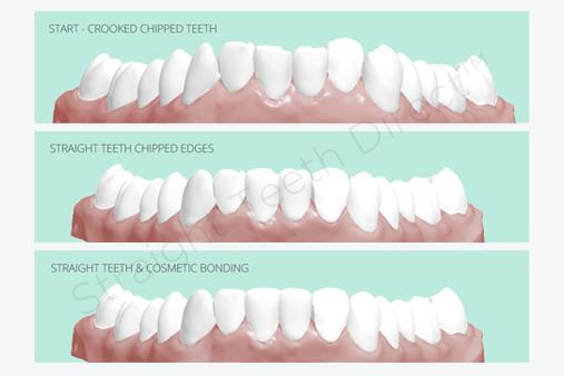 straight-teeth-shape-cosmetic-bonding-process