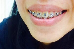traditional-braces-vs-Remote Aligners