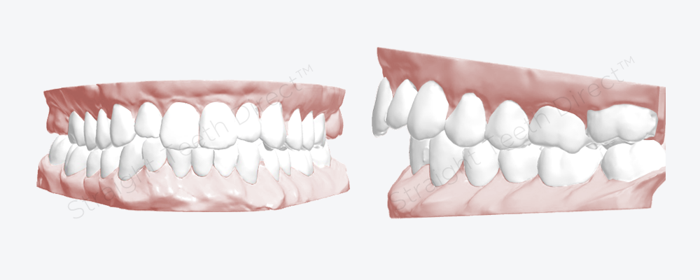 view-of-cosmetic-improvement-on-teeth