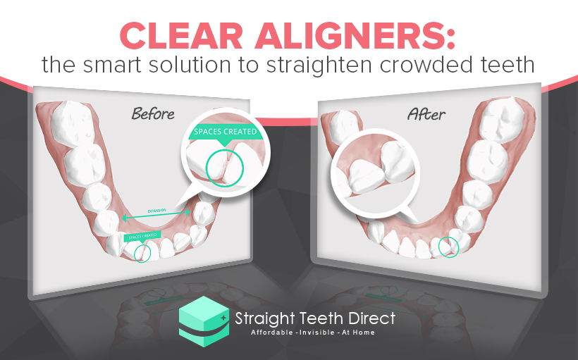 clear aligners for crowded teeth