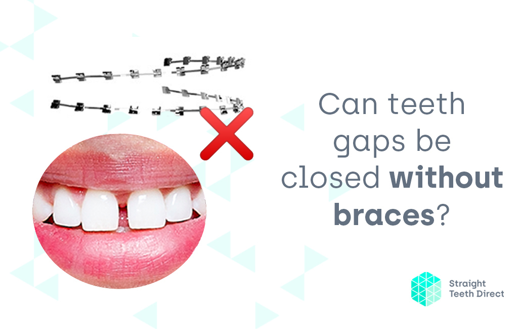 Can teeth gaps be closed without braces