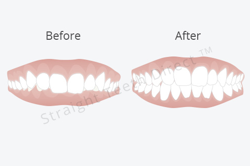 Overbite: wondering if clear aligners could fix yours?