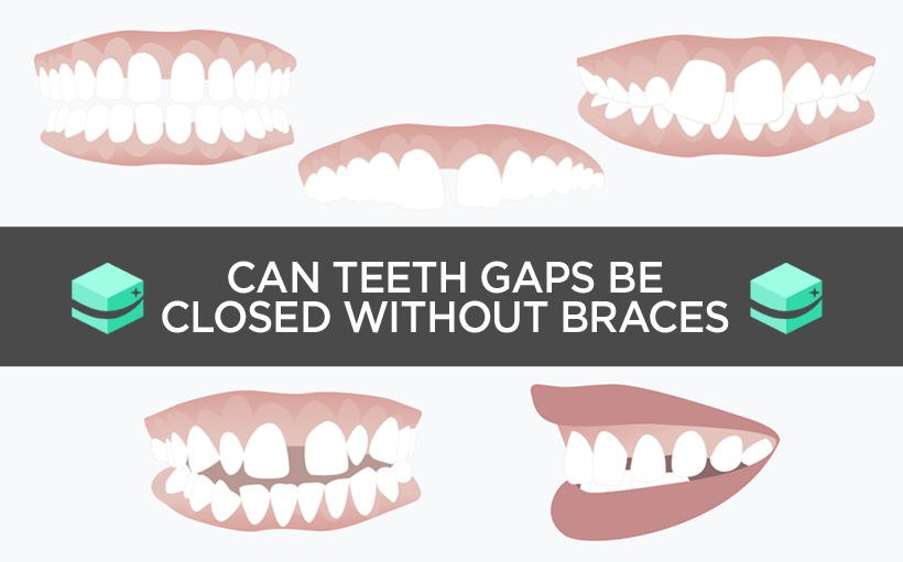 Teeth gaps can they be closed without the use of braces solutioingenieria Images