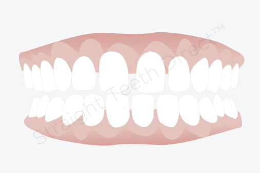 Teeth gaps can they be closed without the use of braces this would be because your teeth are too small in relation to your jaw it would often be a good idea to use aligners or other types of braces to move the solutioingenieria Choice Image