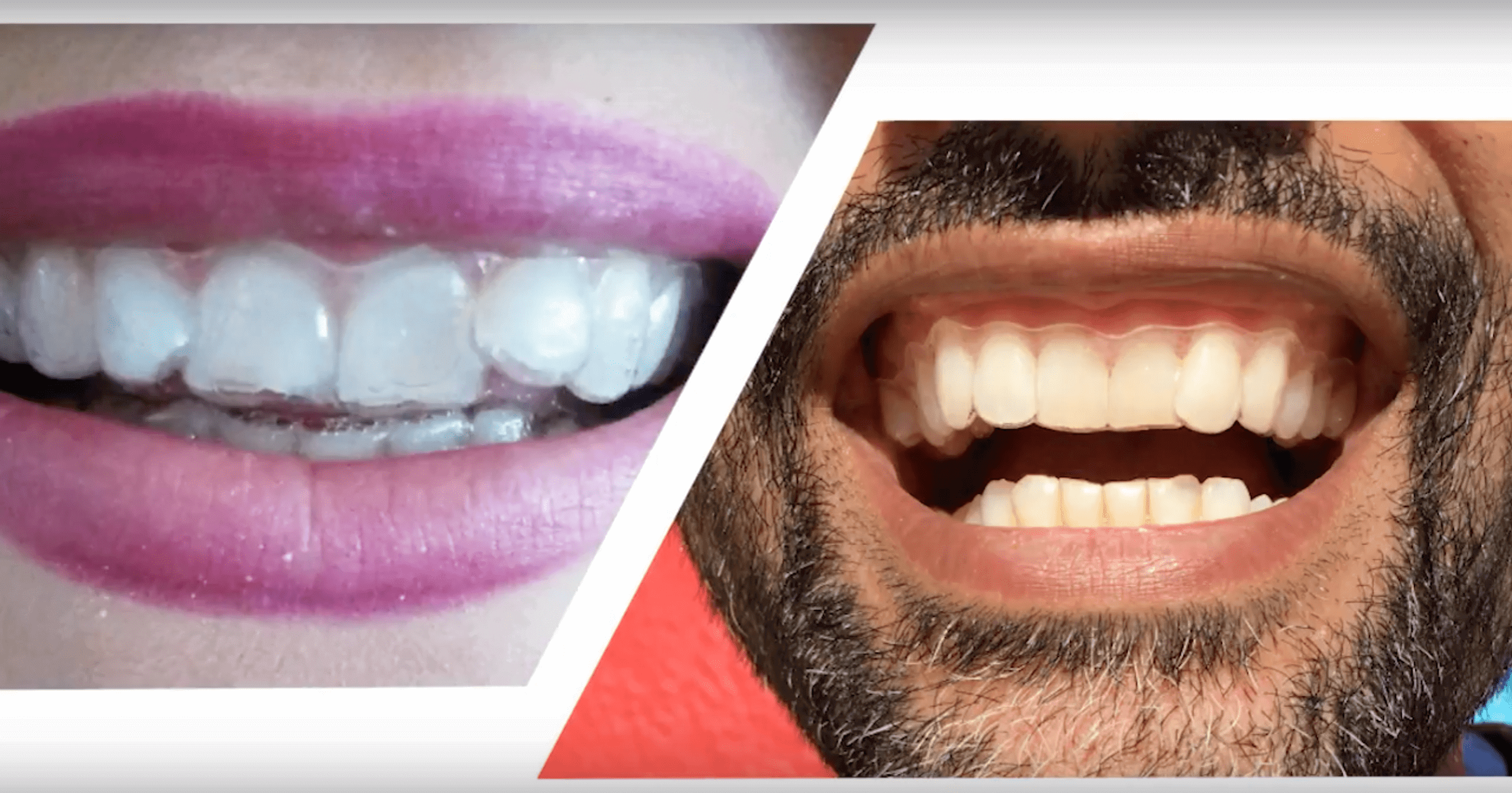 Cosmetic teeth straightening can you really get braces at home included in your cosmetic teeth straightening package youll get all your progress reviews with your orthodontist yes not going to a dentist in person solutioingenieria Images