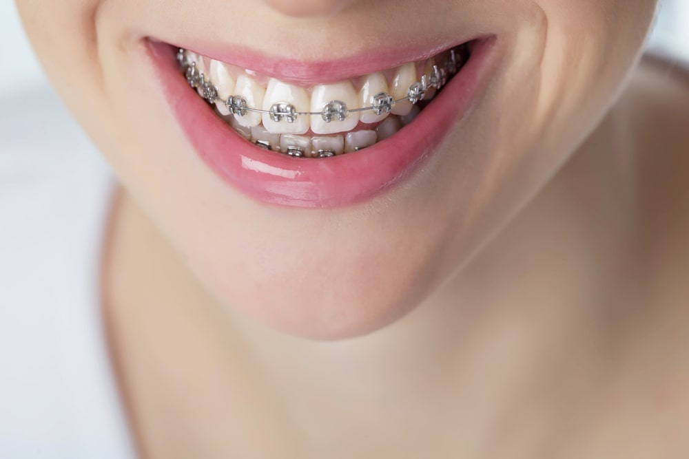 Braces - fixed or removable? 8 points you need to know