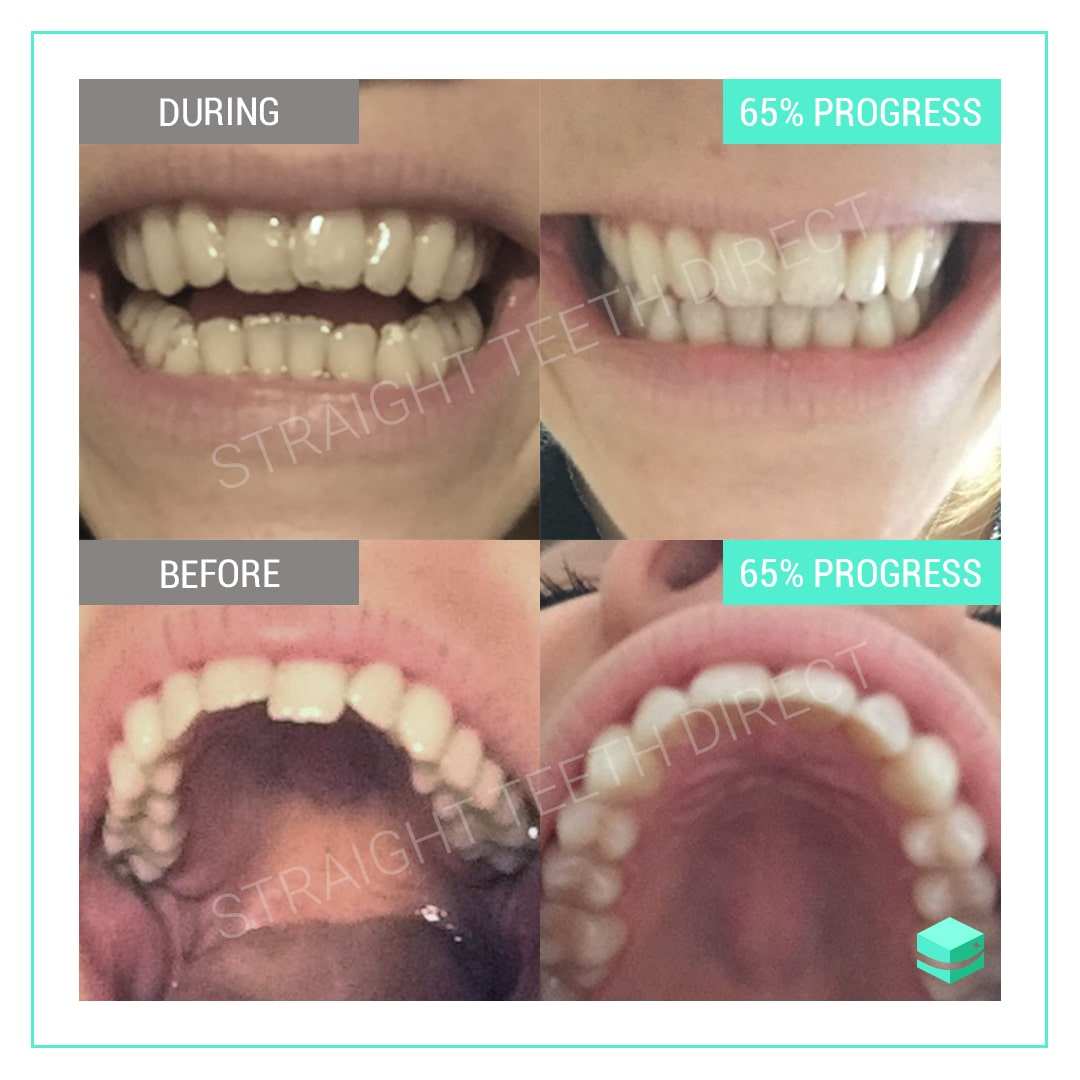 Why Teeth Move Even After Having Braces How To Realign Them