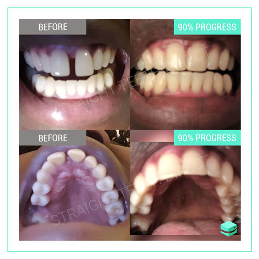 Straight Teeth Direct Review by Awa