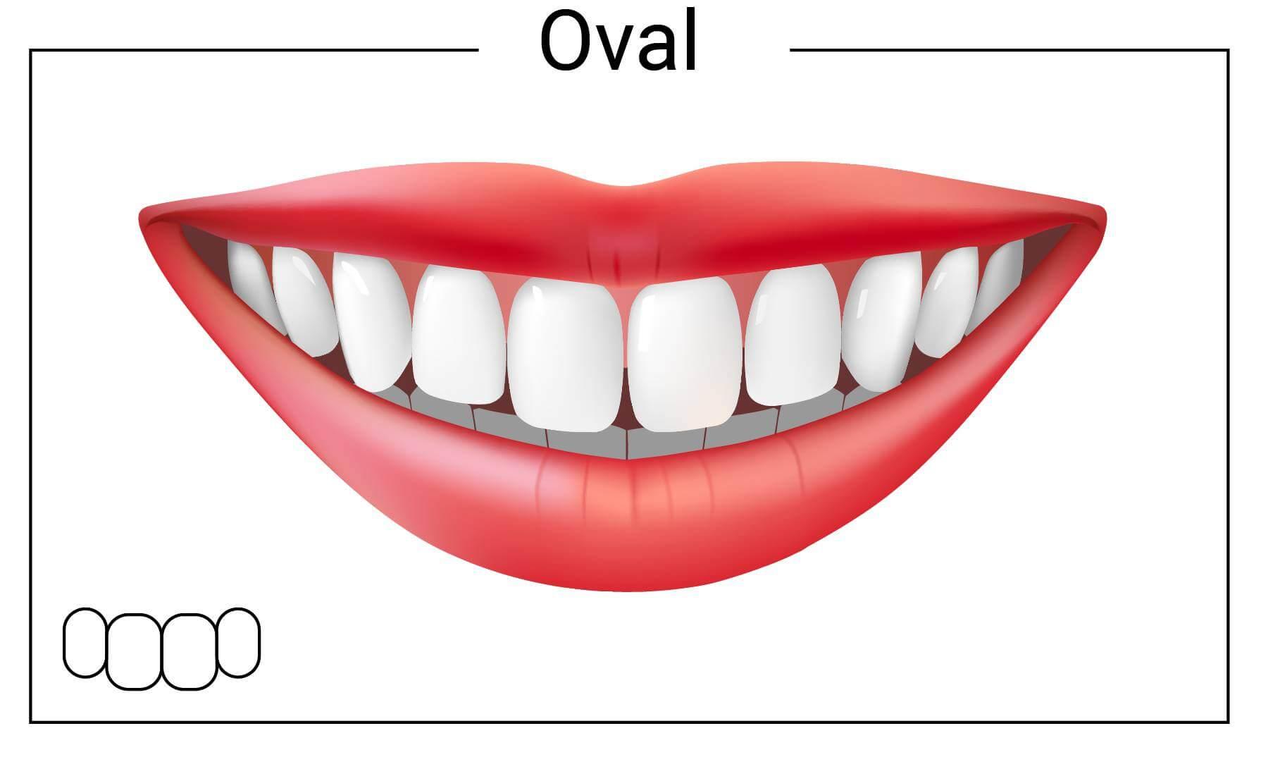 Oval Tooth Shape