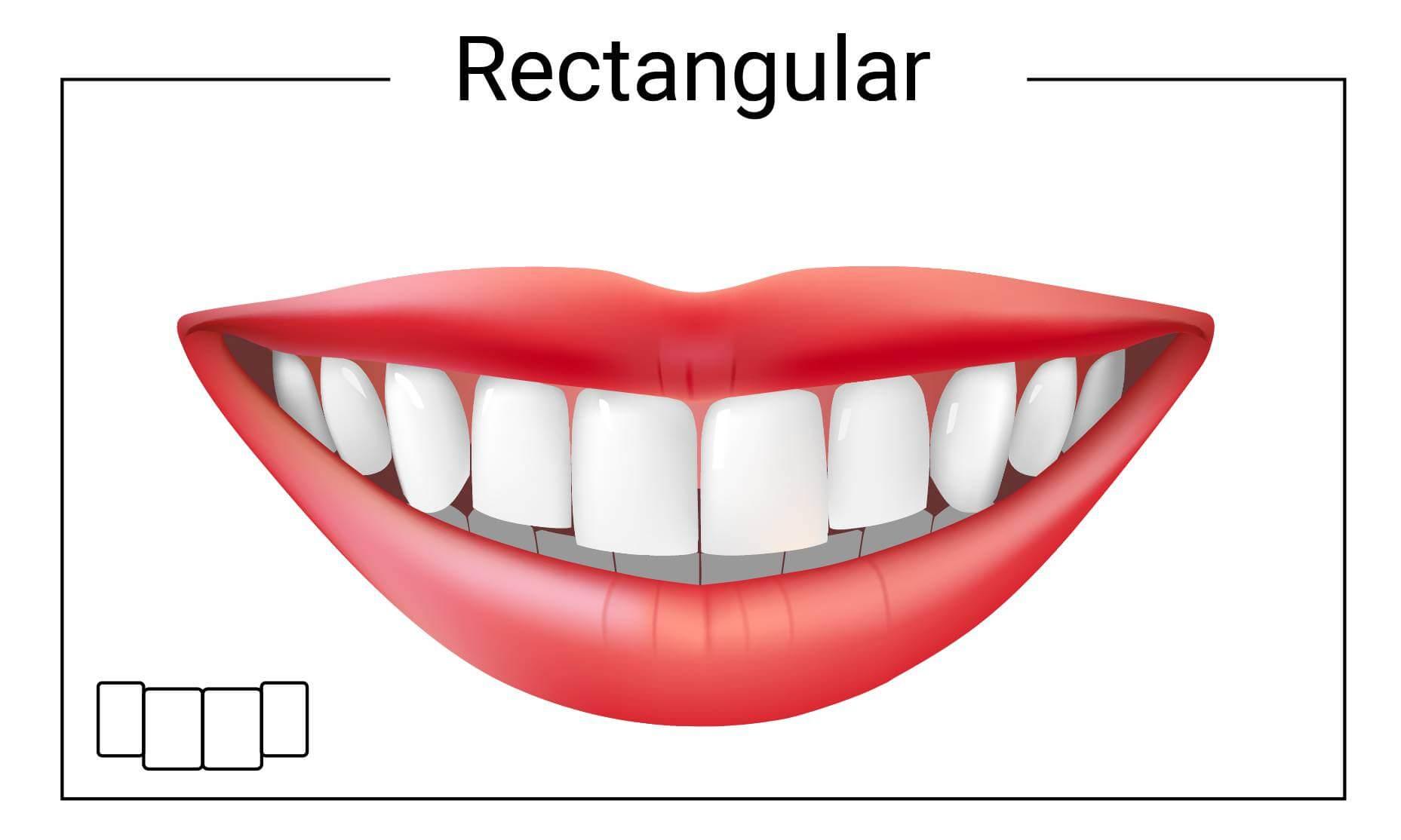 Rectangular Tooth Shape