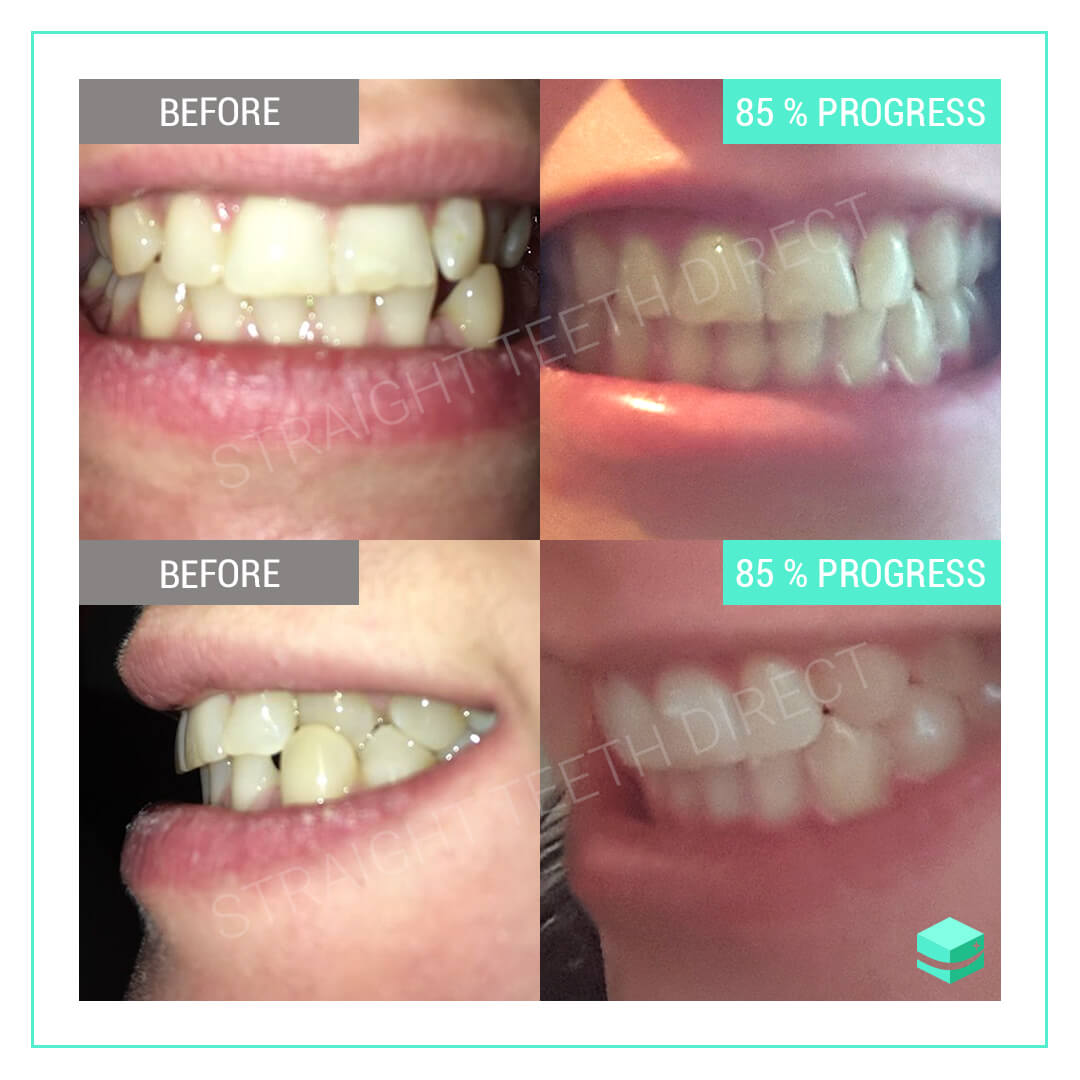 Teeth Straightening At Home: Why It's Not For Everybody