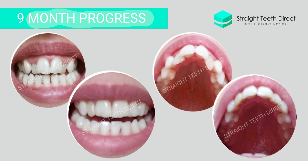 Straight Teeth from home: Marta's progress