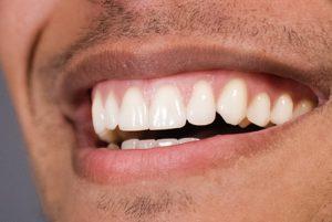Gum health: Thick biotype