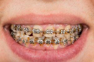 Gum health: fixed braces