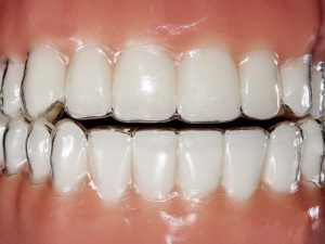 Gum health: clear aligners