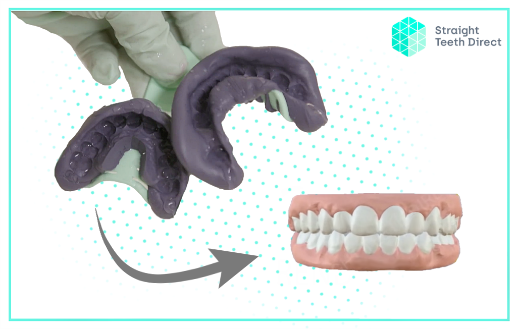 Dental Impressions: How they're used to make your aligners