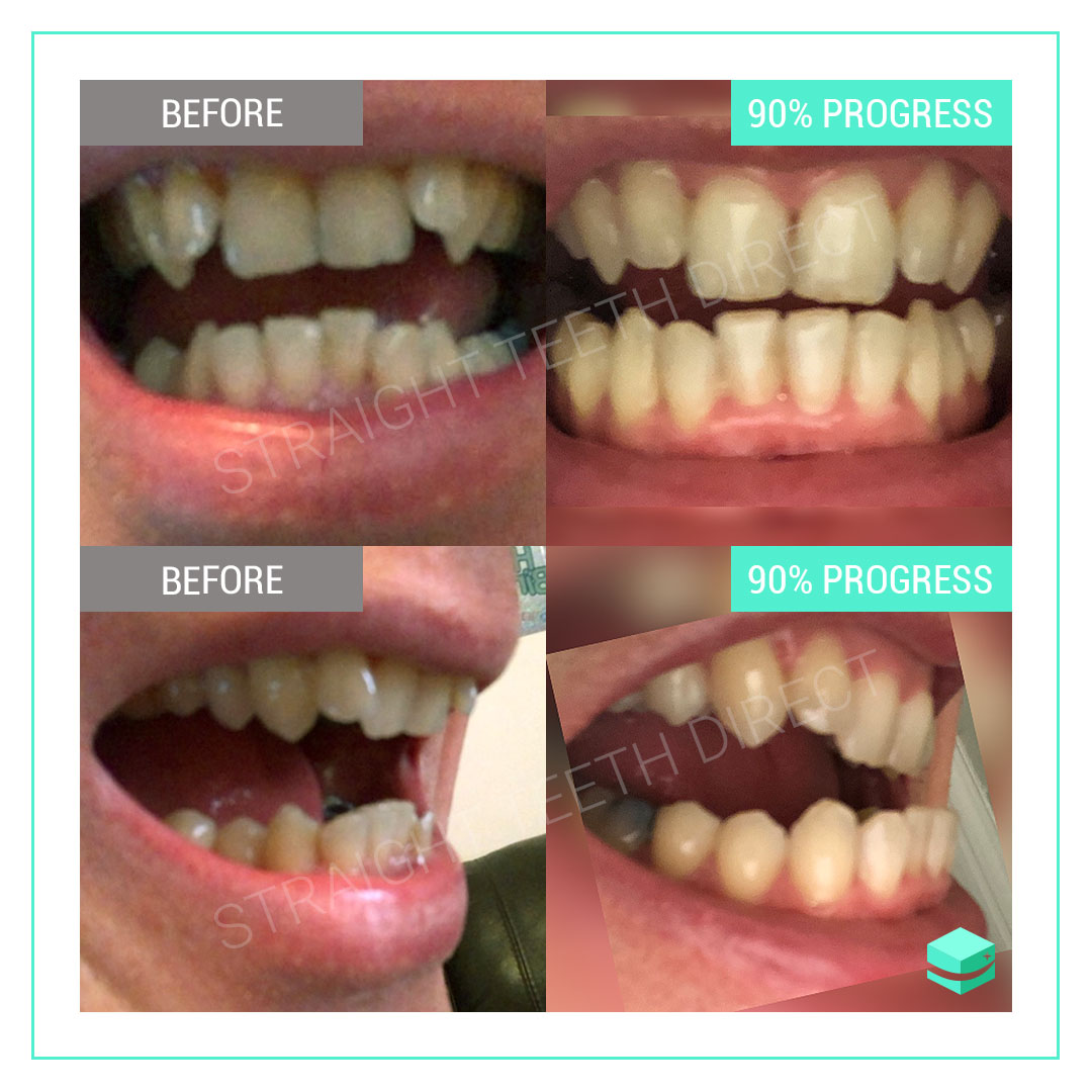 Refurbished Cheap Smile Direct Club  Clear Aligners