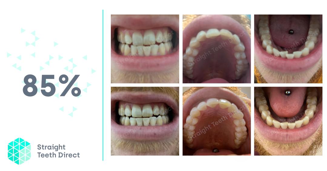 online teeth straightening