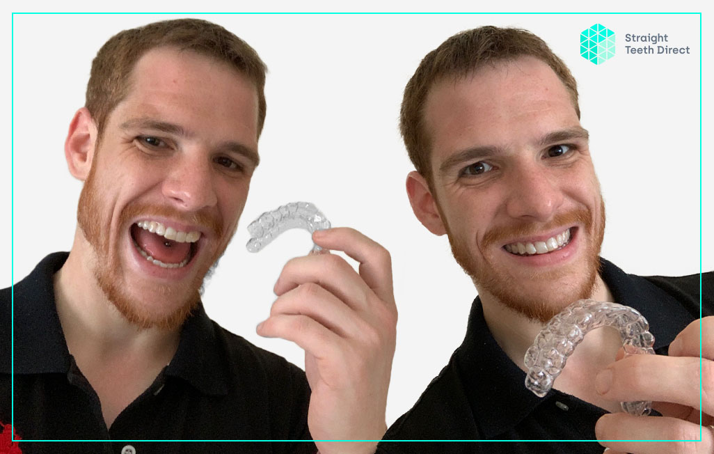 Online teeth straightening for the modern generation - Ben's testimonial