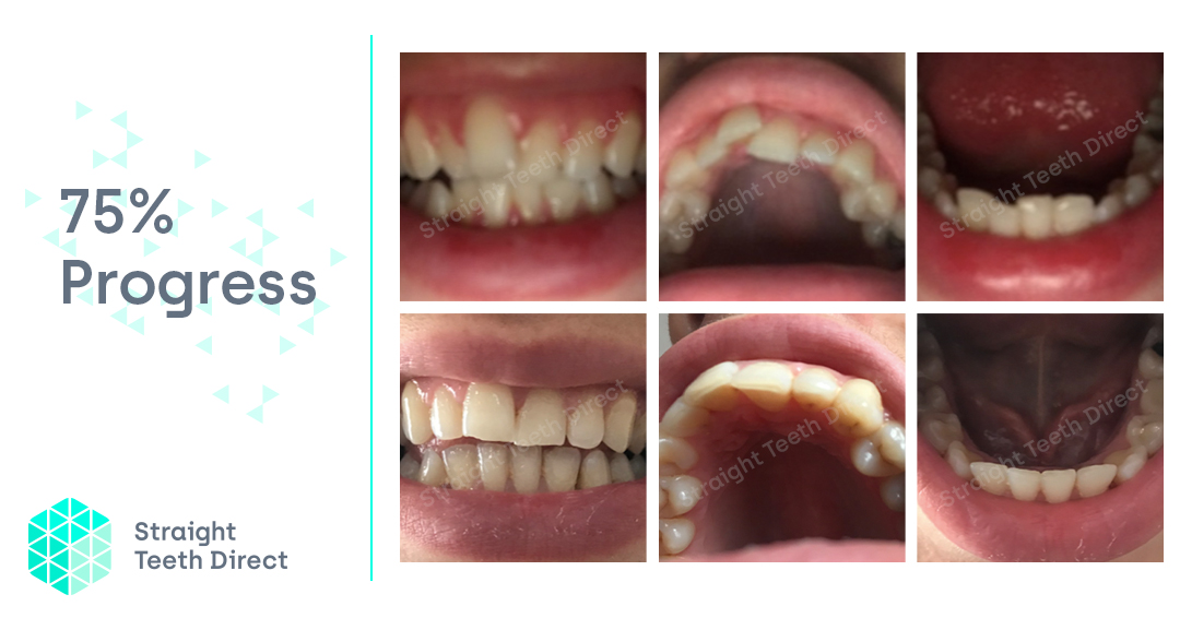 Aligners delivered direct - Toni my journey Straight Teeth Direct