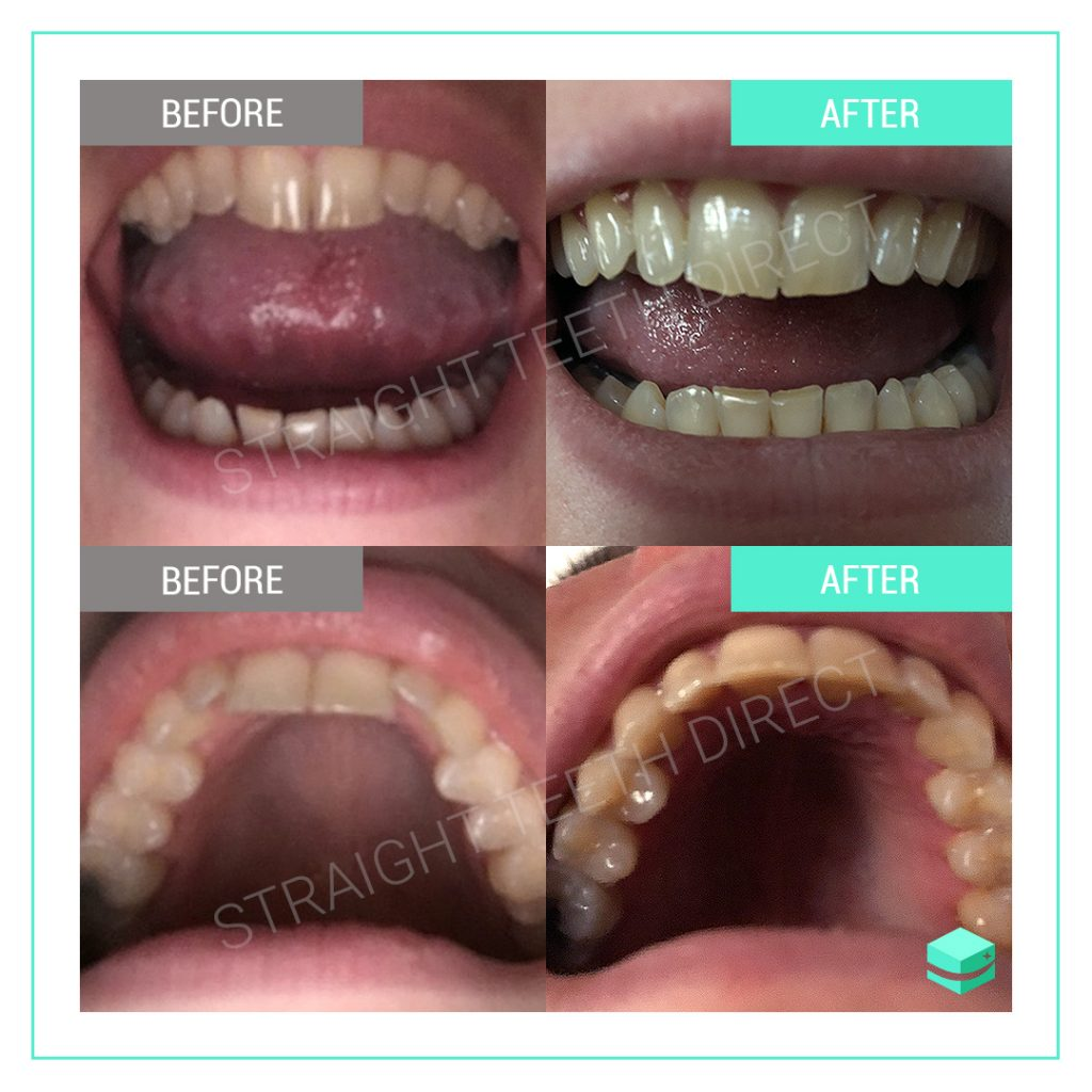 Straight Teeth Direct Review by Leah
