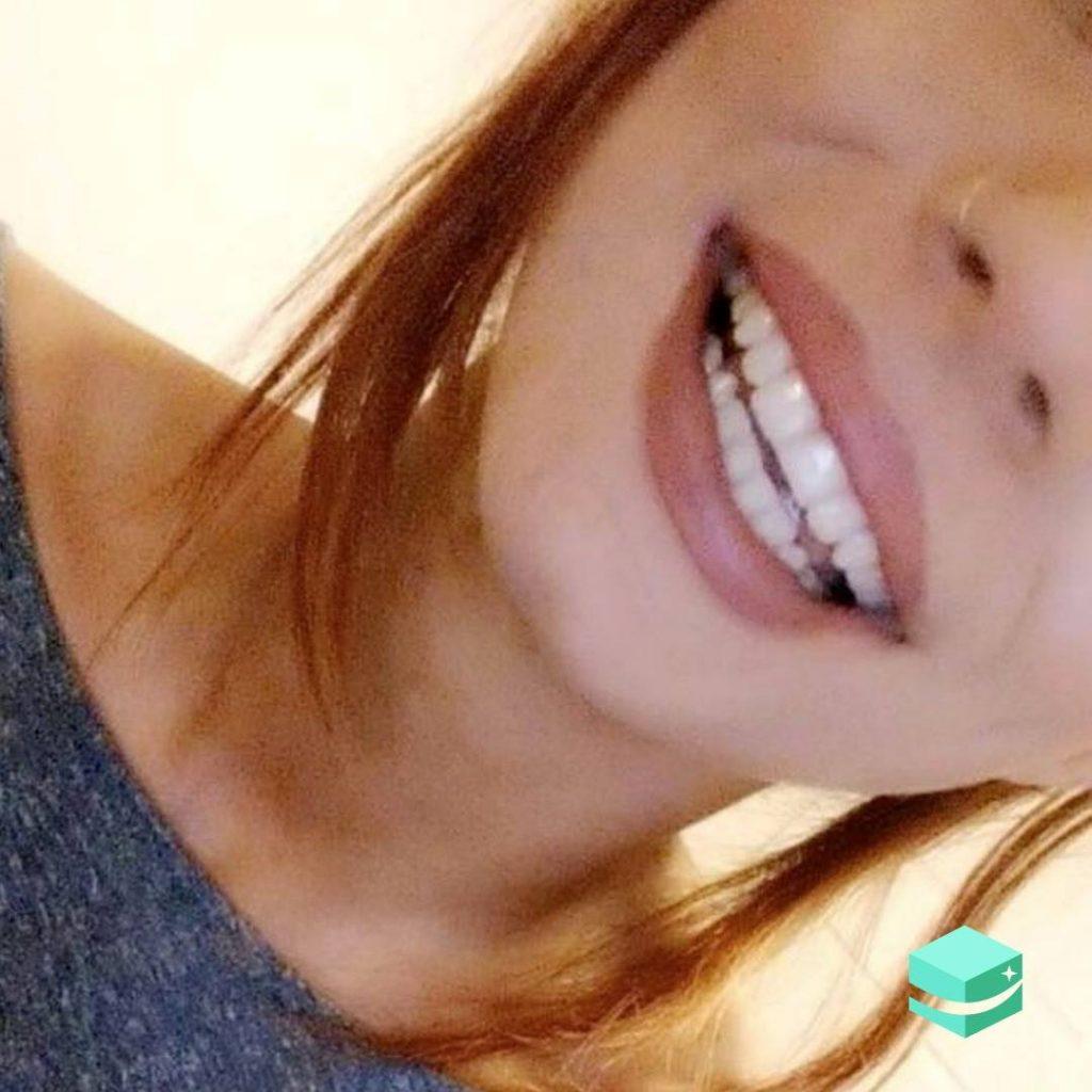my smile delivered