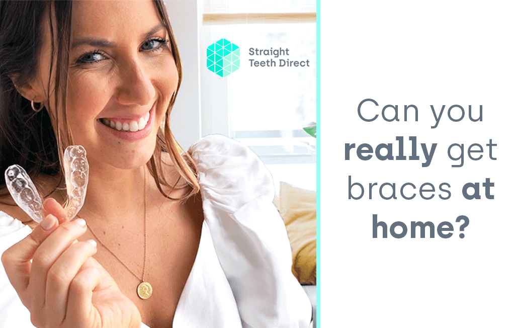 Cosmetic Teeth Straightening With Braces At Home