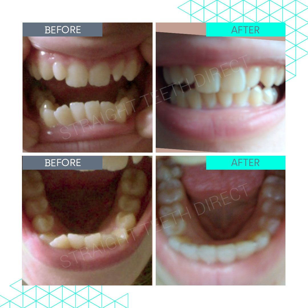 Straight Teeth Direct Review by Angelina