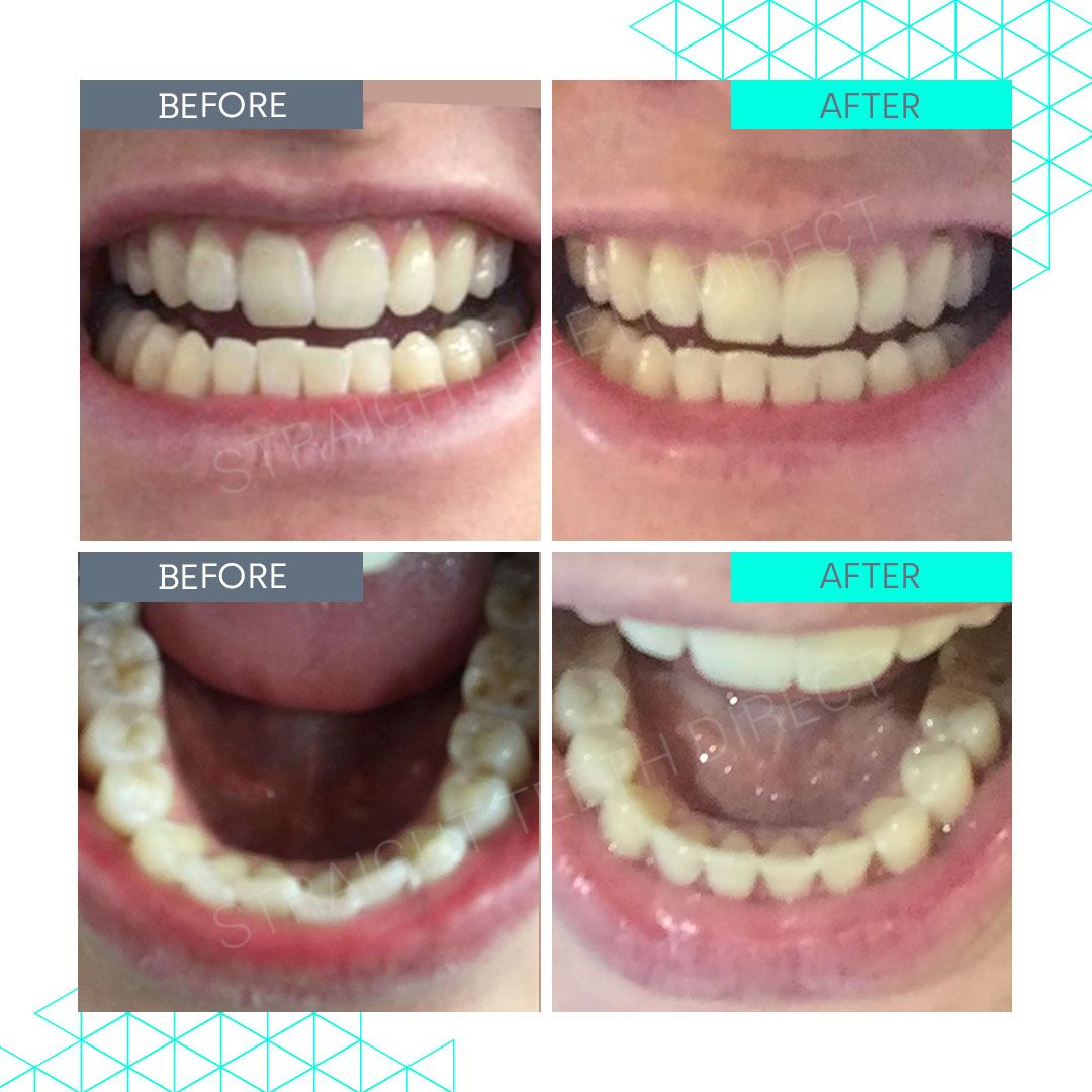 Straight Teeth Direct Review by Claire