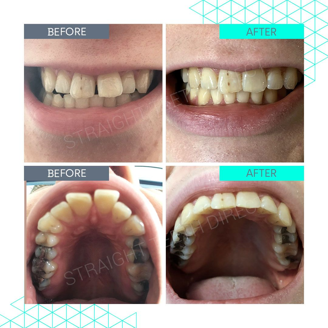 Straight Teeth Direct Review by Isabel