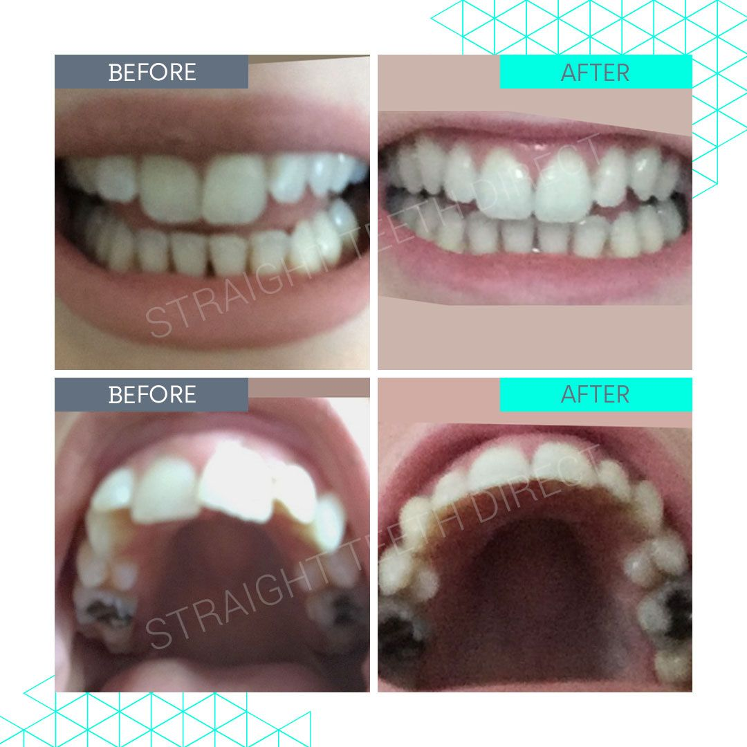 Straight Teeth Direct Review by Rae