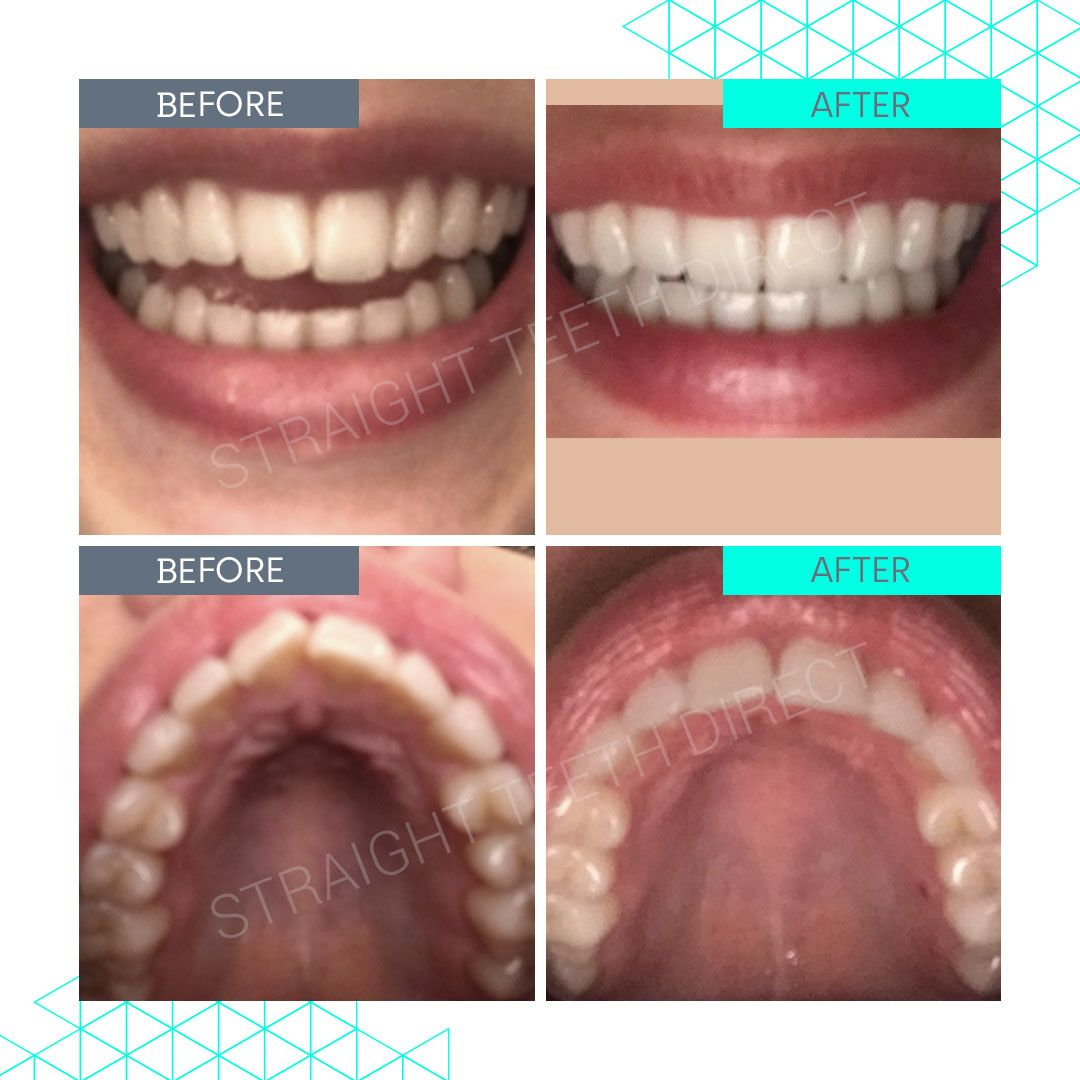 Straight Teeth Direct Review by Beth