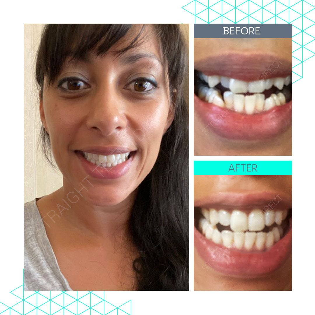 Straight Teeth Direct Review by Estelle