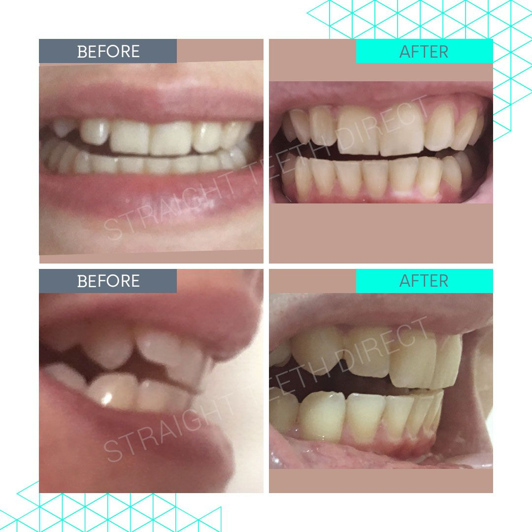 Straight Teeth Direct Review by Holly A