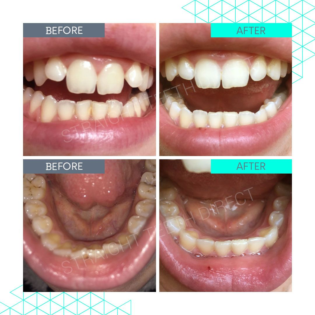 Straight Teeth Direct Review by ClaireS