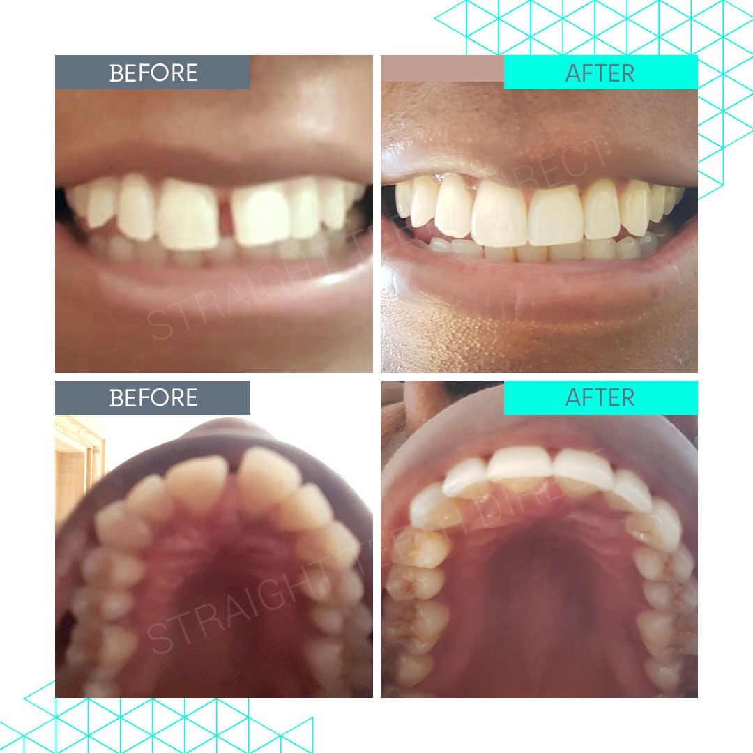 Straight Teeth Direct Review by Marcia