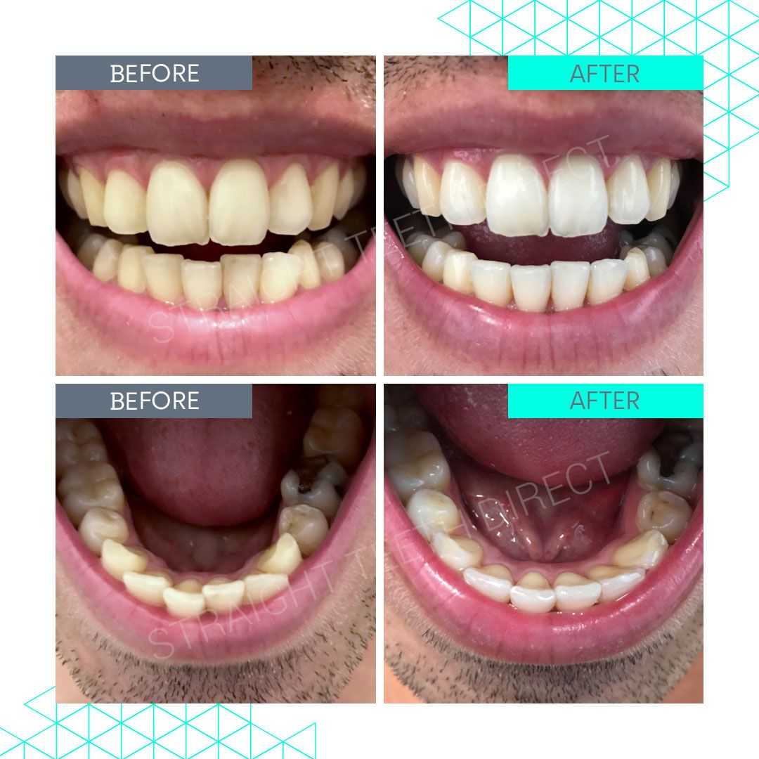 Straight Teeth Direct Review by Sam from Essex