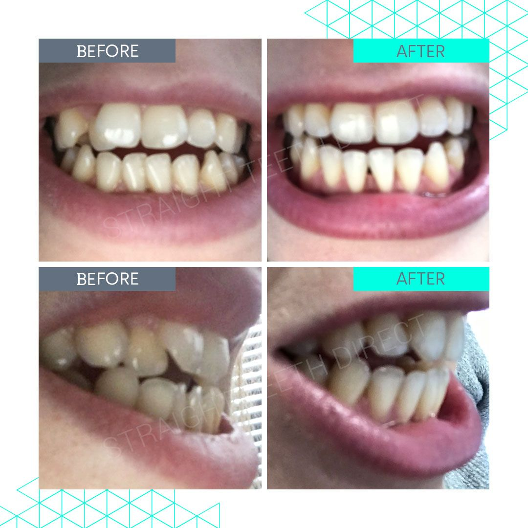 Straight Teeth Direct Review by Athena
